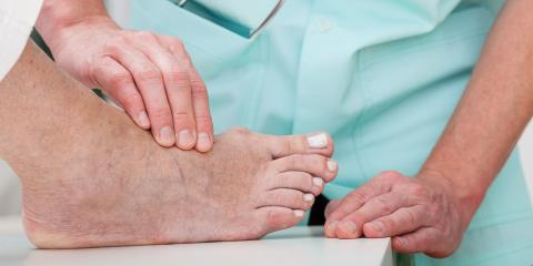 3 Tips on Healing After Bunion Surgery, Greece, New York