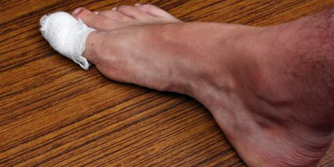 What Causes an Ingrown Toenail?, Greece, New York