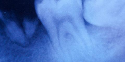 Root Canal 101: 5 Helpful Things To Know Before The Procedure, Irondequoit, New York