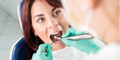 What Happens During a Root Canal? , Foley, Alabama