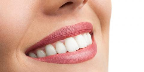 E.Max® Crowns Vs. Zirconia Crowns: What's the Difference?, Franklin Lakes, New Jersey