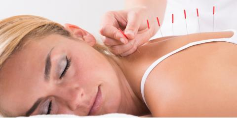 3 Amazing Benefits of Acupuncture, St. Peters, Missouri