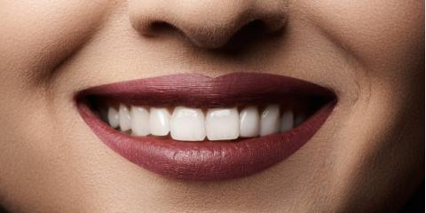 5 Reliable Ways to Prolong Your Teeth Whitening Results, St. Peters, Missouri