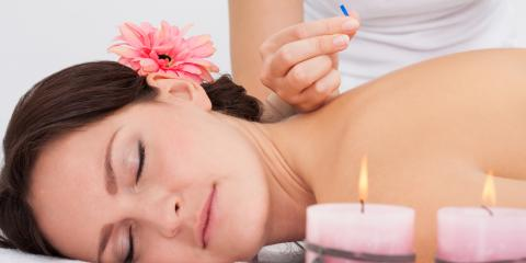 4 Benefits of Acupuncture, St. Peters, Missouri