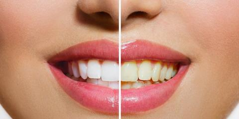 3 Transformative Cosmetic Dentistry Procedures, From Livonia's Top Dentist, Livonia, New York