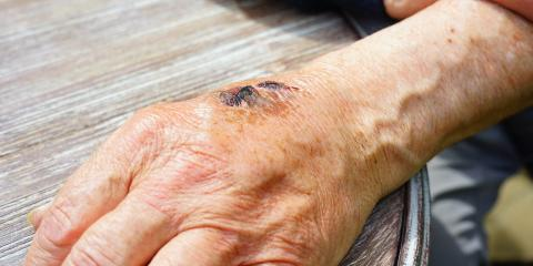 How Good Wound Care Can Prevent Scarring , Lincoln, Nebraska