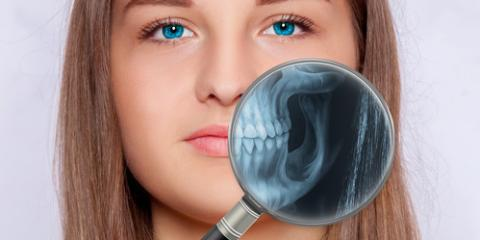 How Digital X-Rays Make Family Dental Care Better, Scarsdale, New York
