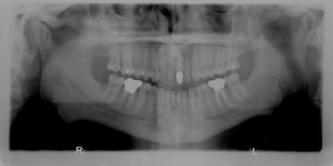 How Safe Are Dental X-Rays? North Pole's Family Dentists Explain, Fairbanks North Star, Alaska