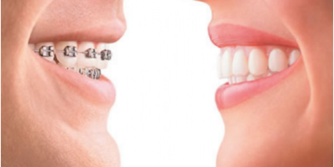 Dentist Recommends Braces for Children at an Early Age, Anchorage, Alaska