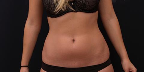 Now Trending: BTL Vanquish ME™ From Tualatin's Body Contouring Experts, Beaverton-Hillsboro, Oregon