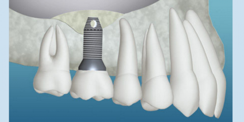Find Out More About Dental Implants From New London's Oral Surgery Experts, New London, Connecticut
