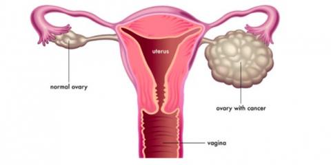 New Treatment for Recurrent Ovarian Cancer, Manhattan, New York