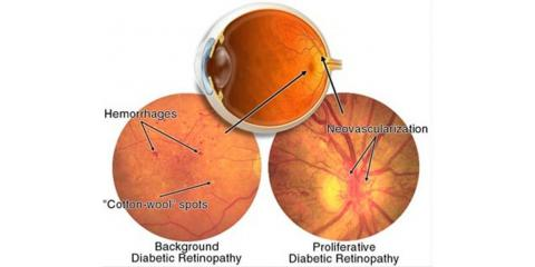 What to Know About Diabetes-Induced Eye Conditions, Middletown, New York