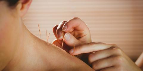 The History of Acupuncture: a Brief Overview, Seattle, Washington