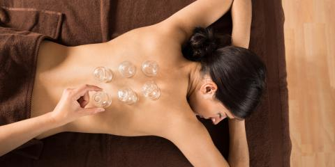 What Is Cupping & What Are the Benefits?, Seattle, Washington