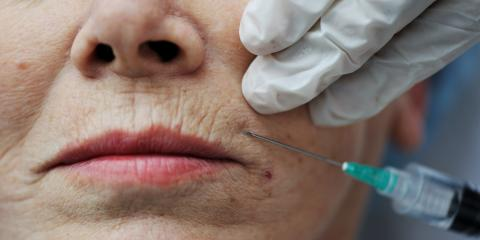 Botox®: A Dentist Explains the Benefits of This Cosmetic Treatment, Honolulu, Hawaii