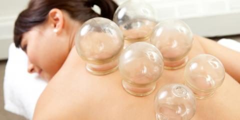Cupping for stress-related back tension, San Rafael, California