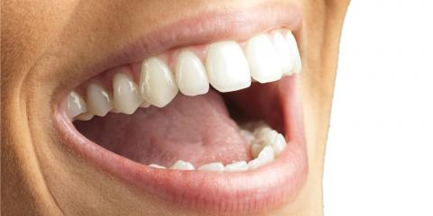 Brighten Your Smile With Teeth Whitening This Summer, Manhattan, New York