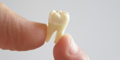 What's the Difference Between Simple vs. Surgical Tooth Extractions?, Anchorage, Alaska