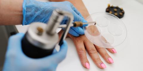 How Cryosurgery Is Used to Treat Skin Cancer, Princeton, West Virginia