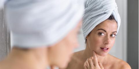 3 Important Facts About Sensitive Skin, Weatogue, Connecticut