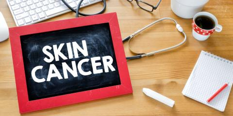 3 Signs You May Have Skin Cancer, Princeton, West Virginia