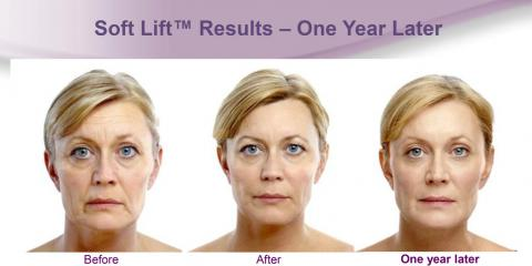 Lunch Time SoftLift with Botox, Juvederm and Laser!, Lake Worth, Florida