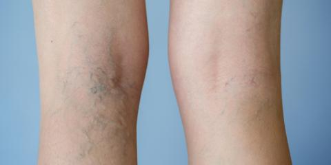 4 FAQ About Spider Veins, Hartford, Connecticut