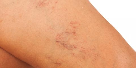 Connecticut Dermatologists Explain What Causes Spider Veins & How to Make Them Disappear, Hartford, Connecticut