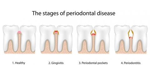 Gingivitis & Periodontitis: Symptoms & Treatment of Gum Disease, North Branch, Minnesota