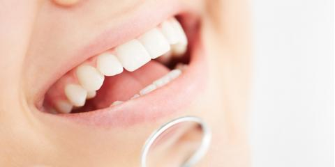 Dental Crowns & Bridges: What Is the Difference?, Stuttgart, Arkansas