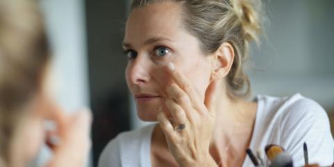 What Are Sun Spots & How Can You Treat Them?, Columbus, Nebraska