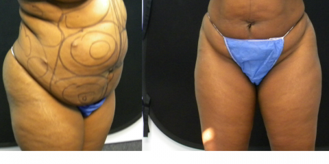 Liposuction vs. CoolSculpting: What's the Difference?, Shaker Heights, Ohio