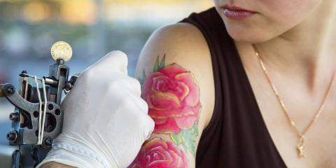 A Quick Look at the Evolution of Laser Tattoo Removal Procedures, Milford, Connecticut