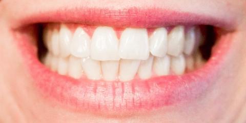 How Teeth Whitening at Leidenheimer Dental Group Works & Benefits You, Elyria, Ohio