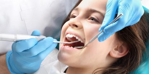 What Happens During a Professional Teeth Cleaning?, Dunkirk, New York