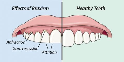 Are you a Tooth Grinder? All about Bruxism, Manhattan, New York