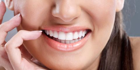 3 Reasons to Choose Professional Teeth Whitening Over DIY Treatments, Bronx, New York