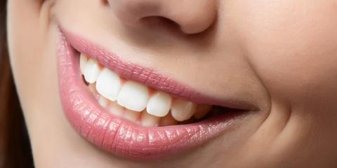 Which Teeth Whitening Method Is Best for You?, Columbia, Maryland