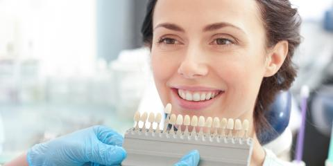 How You Should—& Shouldn't—Care for Your Smile After Teeth Whitening, Enterprise, Alabama