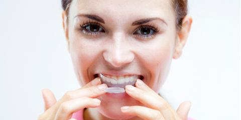 Which Teeth Whitening Method Is Best for You?, Greenwood Village, Colorado