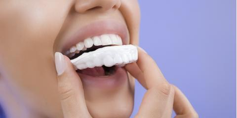 5 Teeth Whitening Techniques to Achieve the Brightest Smile, Gulf Shores, Alabama