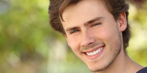 4 Smile-Worthy Reasons to Consider Teeth Whitening, Homer, Alaska