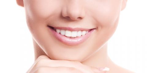 Top 3 Benefits of Professional Teeth Whitening, South Kohala, Hawaii