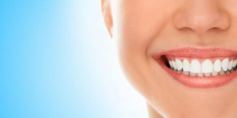 Feel Confident About Your Smile With Teeth Whitening From John P. Belbas DDS, Lakeville, New York