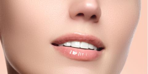 Why Should I Get Professional Teeth Whitening?, Perry, Georgia
