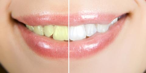 3 Reasons Why Teeth Whitening Is Worth the Investment, St. Charles, Missouri
