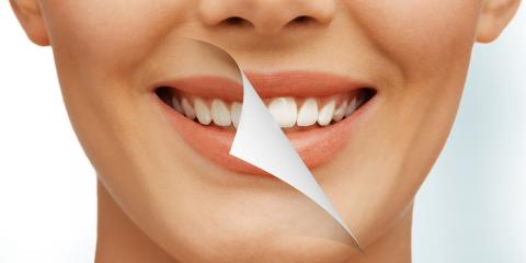 Ask a Cosmetic Dentist: What Are the Side-Effects of Teeth Whitening?, Covington, Kentucky