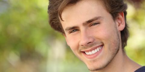 3 FAQs About Teeth Whitening , Waynesboro, Virginia