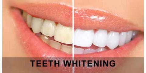 What's An In-Office Teeth Whitening Treatment Like?, North Branch, Minnesota